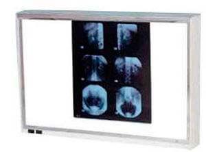 f502cd790 Negatoscopio Médico y Dental - Qué es | Información | Dónde comprar